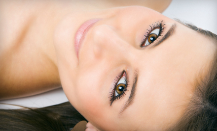 One or Three Alpha-Beta Facial Peels at Facelogic Spa in Redmond (Up to 53% Off)