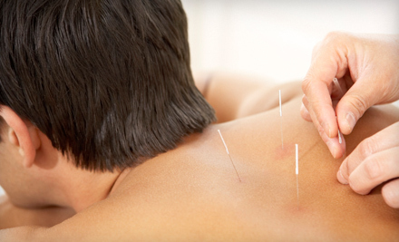 $35 for Custom Acupuncture Treatment and Consultation at Diana Shkolnik Acupuncture ($80 Value)